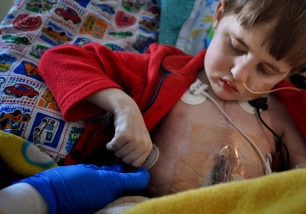 . Cameron Ulrich applies an electrode monitoring patch to his torso.   (Pioneer Press: Richard Marshall)